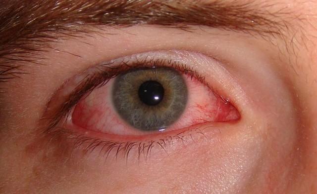 Waspadai Sindroma Mata Kering Karena layar HP